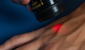 terapia laser cicatrici